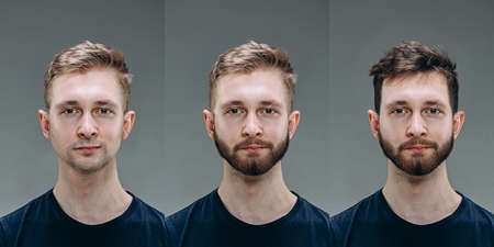 Brunette. Collage of man before and after visiting barbershop, clients delighted with different haircut, mustache, beard. concept of bodycare, male beauty, comparison. Shaving, hairstyling, coloring.