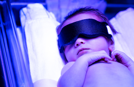 Newborn infant baby boy receiving phototherapy for jaundice at the hospital Standard-Bild