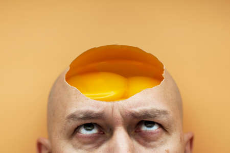 The concept of a lack of thoughts in the head, no ideas. On a bald head, a man has an open, raw, shelled egg