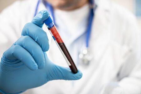 Widok lekarza trzymającego fikcyjną próbkę krwi z probówki, prawdopodobnie zakażoną.