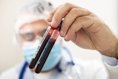 View of a doctor holding a fictional test tube blood sample, infected with virus.