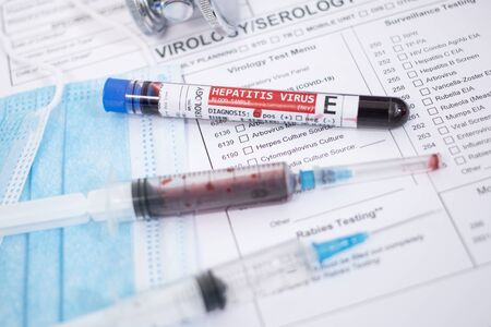 Fictional Blood samples with infected hepatitis E virus, with mask, syringe and lab report.