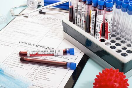 Several fictional infected blood samples with various virus with a lab report, mask and syringe.