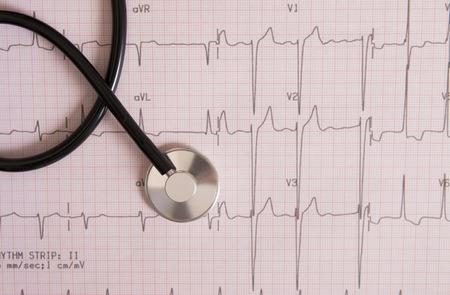heart rhythm and stethoscope