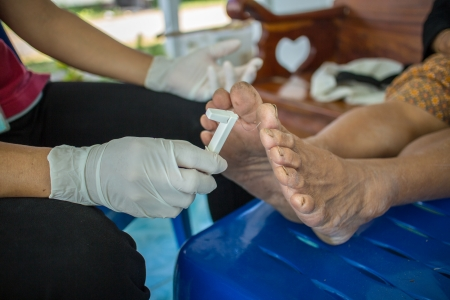 Screening foot diabetic photo