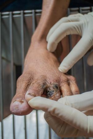 deformity: Diabetic ulcers at the foot