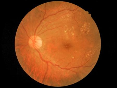 Medical photo of retinal