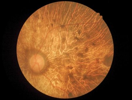Medische foto van het netvlies, diabetes, Macula degeneratie