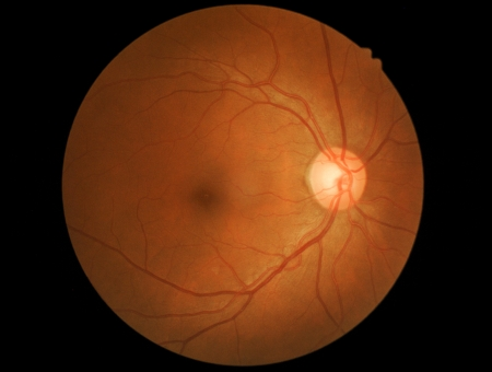 optic nerve: photo medical detailing the retina and optic nerve inside a healthy human eye