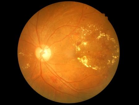 Medical photo of retinal pathology,exudates,micro aneurysms Stock Photo