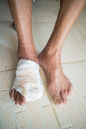 neuropathic: incise toe foot of diabetic patient Stock Photo