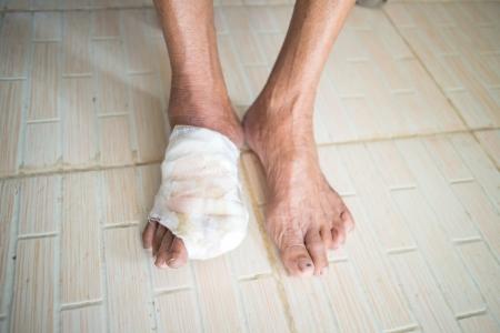 incise toe foot of diabetic patient photo