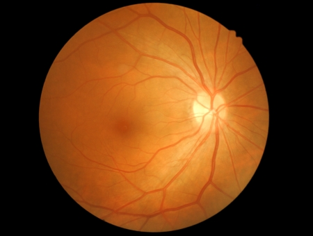 photo medical detailing the retina and optic nerve inside a healthy human eye