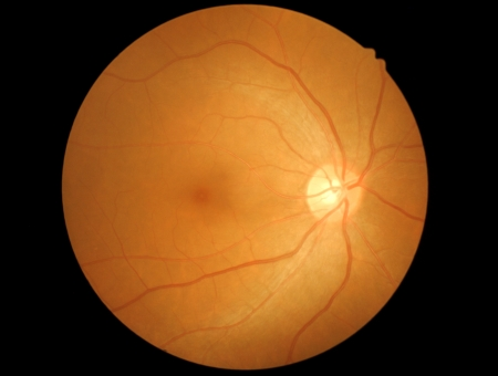 behold: retina and optic nerve Stock Photo