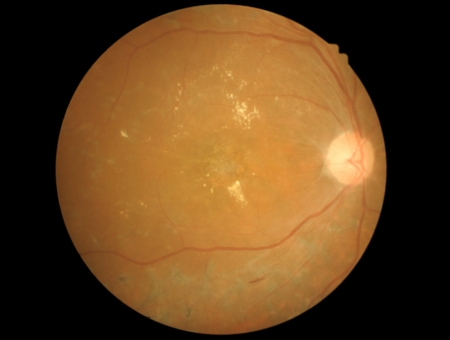 photo medical detailing the retina  optic nerve and diabetic retinophaty photo