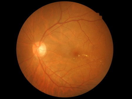 photo medical detailing the retina  optic nerve and diabetic retinophaty