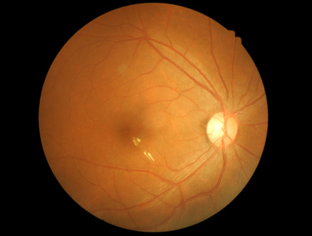 Medical photo retinal of diabetic