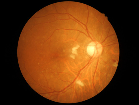 atrophy: Medical photo retinal of diabetic