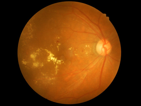 Medical photo retinal of diabetic