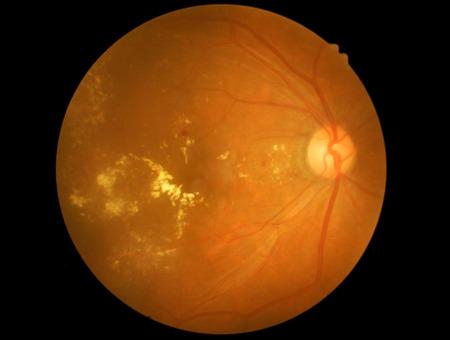 hemorrhage: Photo Medical retina di diabetica Archivio Fotografico
