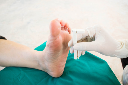 lesion: diabetic foot skining  neuropathy Stock Photo