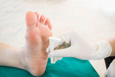 diabetic foot skining  neuropathy Standard-Bild