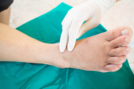 diabetic foot skining  neuropathy Stock Photo - 33084889