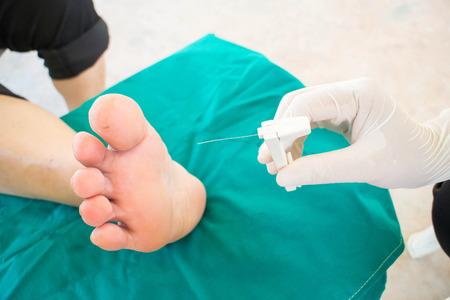 diabetic foot skining neuropathy