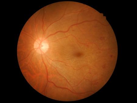 haemorrhage: Retina of diabetic - diabetic retinophaty