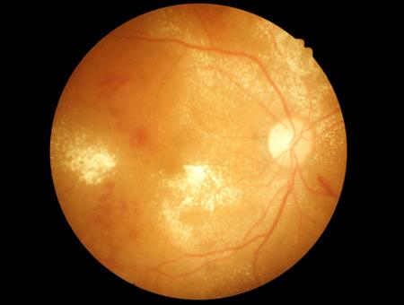 macula: Retina of diabetic - diabetic retinophaty