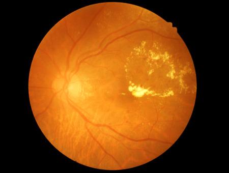 Retina von diabetischen - Diabetiker retinophaty Standard-Bild - 34754620
