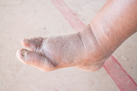 swelling: Foot swelling on diabetic Nephropathy
