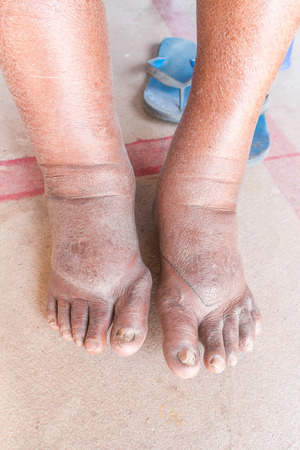 neuropathic: Foot swelling on diabetic Nephropathy
