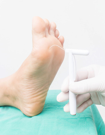 diabetic foot skining neuropathy