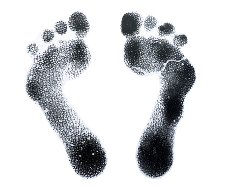 neuropathic: Foot print for sewing shoes diabetic , diabetic neuropathy