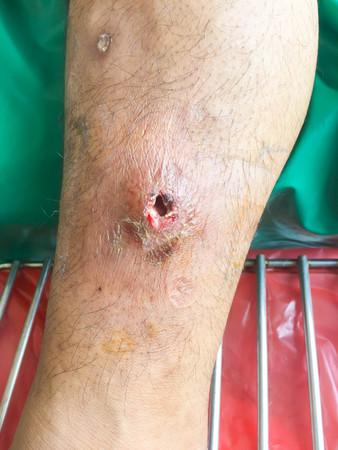 abscess: Abscess wound. Stock Photo