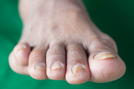 fungal disease: Complications of diabetes , Dermatophyte