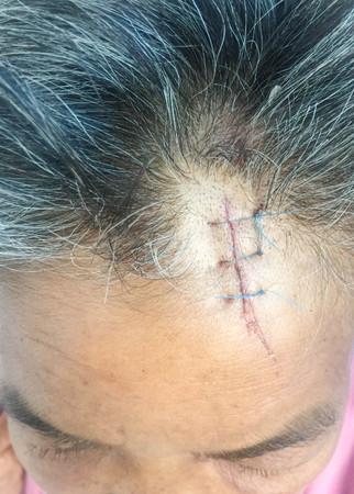 flesh surgery: head injury