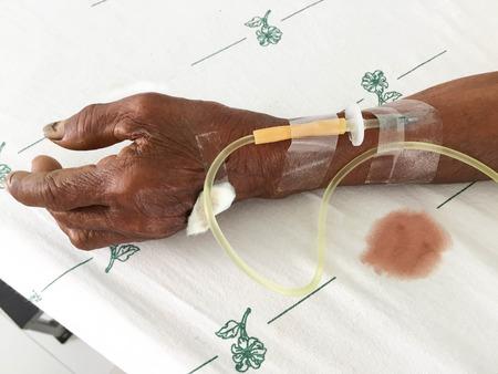 Doctor drip saline  intravenous patient in the hospital