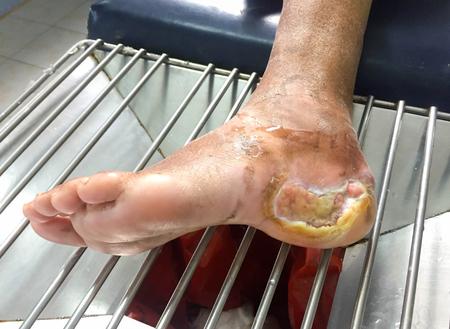 Diabetes foot