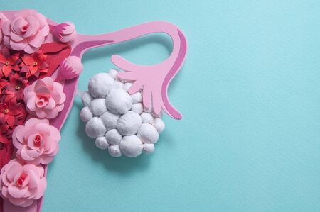 Concept polycystic ovary syndrome, PCOS. Paper art, awareness of PCOS, image of the female reproductive system