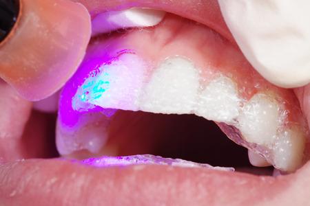 bleaching: close up at the dentist bleaching