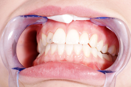 bleaching: beautiful woman gets bleaching from dentist