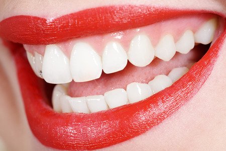 beautiful white teeth with red mouth 스톡 콘텐츠