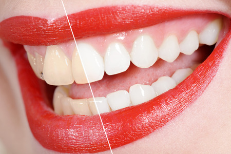 brush teeth: before and after the tooth whitening Stock Photo
