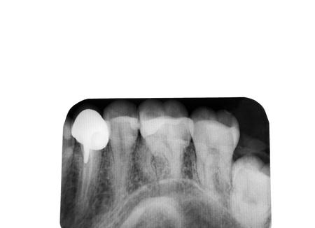 Closeup of a dental x-ray photo