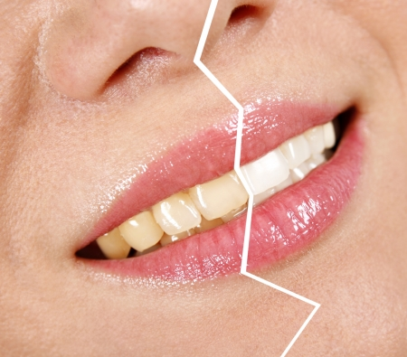 Whitening treatment photo