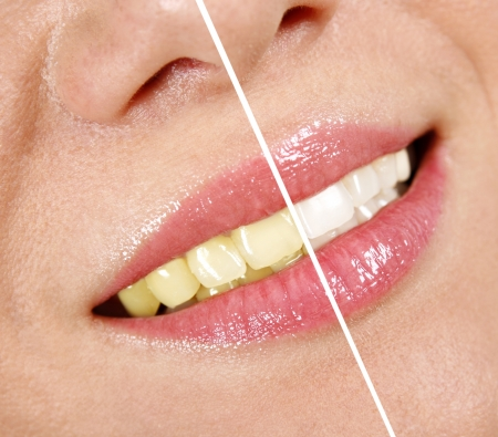 yellow teeth: Whitening treatment Stock Photo