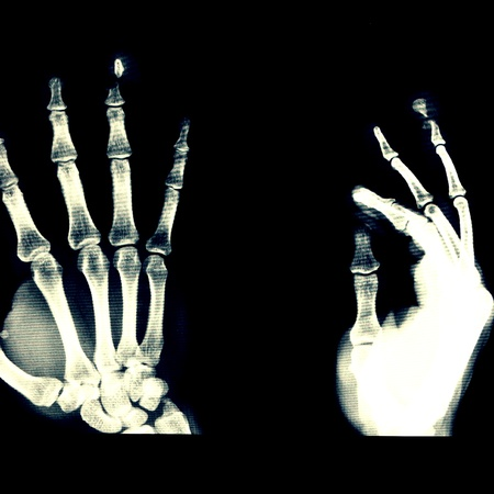 distal: Opened fracture distal phalanx of Rt. ring finger