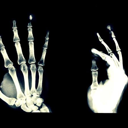 phalanx: Opened fracture distal phalanx of Rt. ring finger